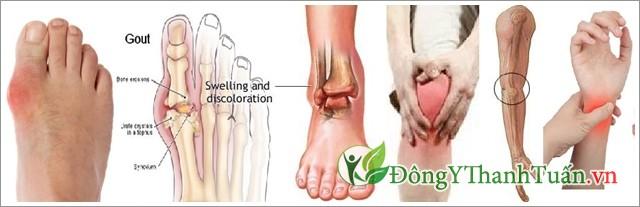Cây nở ngày đất trị bệnh gout