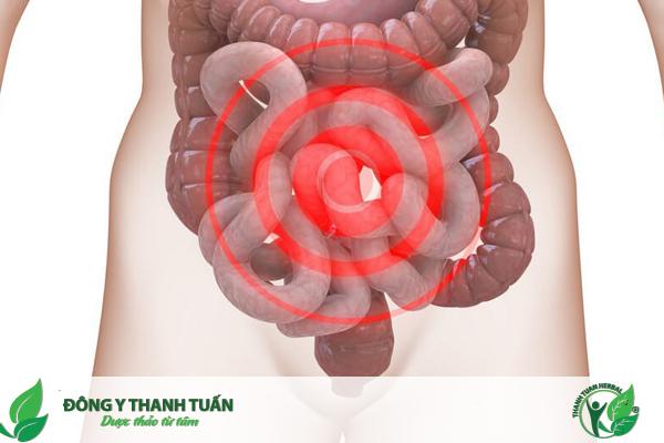 Hội chứng ruột kích thích thường làm cho bạn rất khó chịu